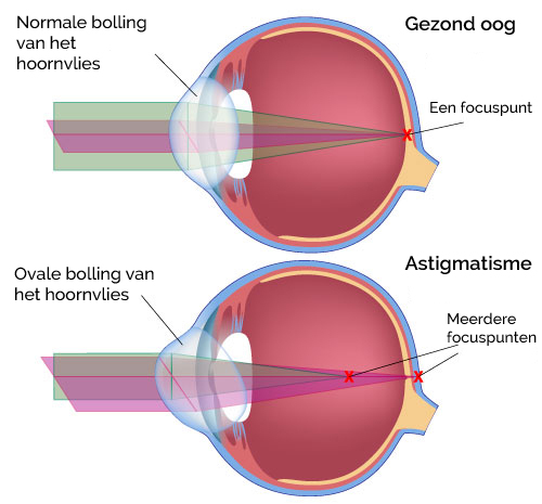 Astigmatisme Roosdorp Opticiens oog