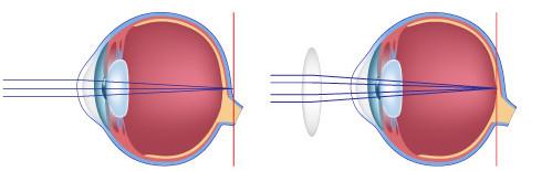 Verziend oog